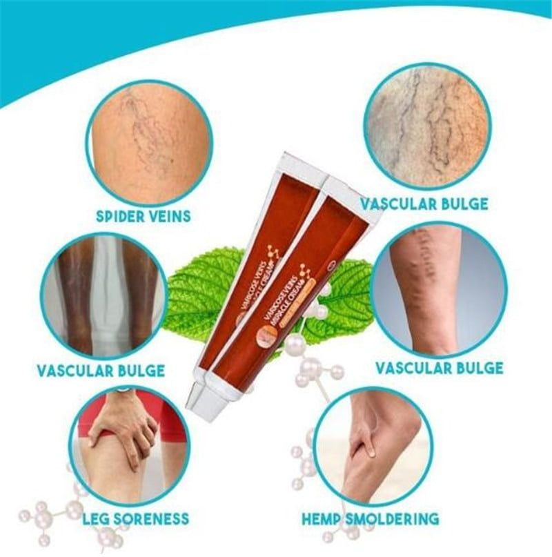 arcadia.zone Varicose Veins Miracle Cream